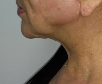 fibrosis de cuello post lipoplastia cirugia plastica susanibar .png